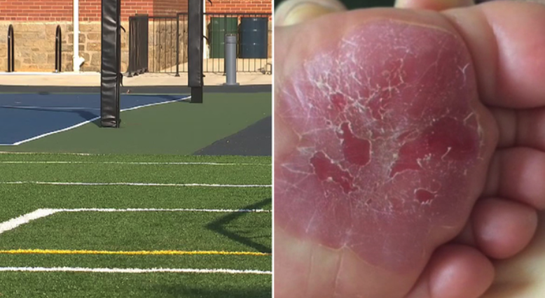 Parents push for warning on playgrounds, synthetic turf in heat